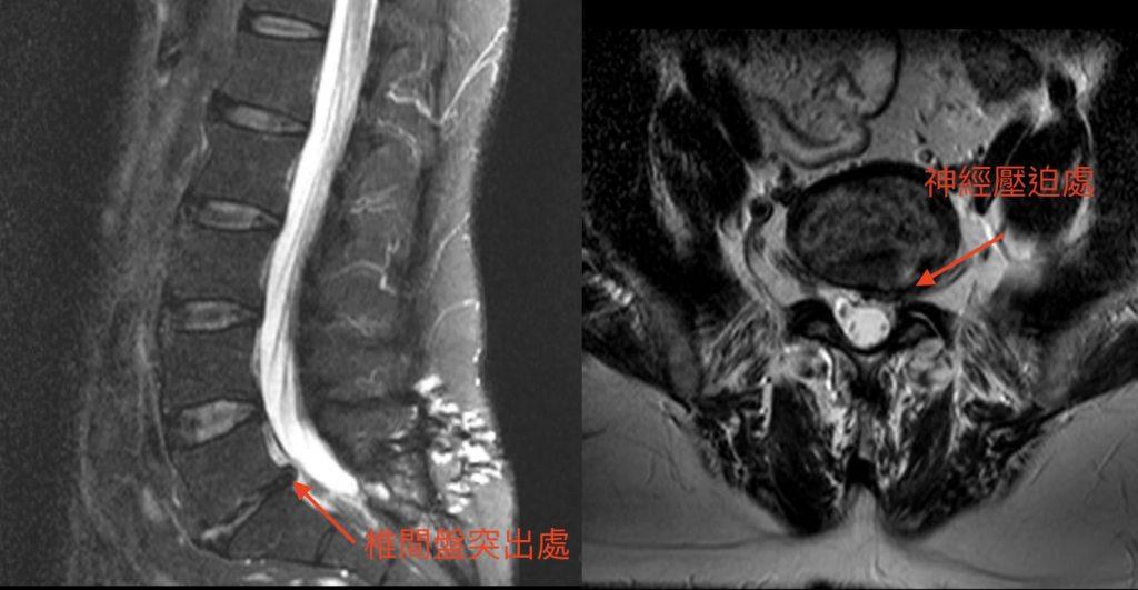 椎間盤突出手術-雙通道內視鏡-脊椎微創手術-永和骨科推薦-陳奕霖醫師