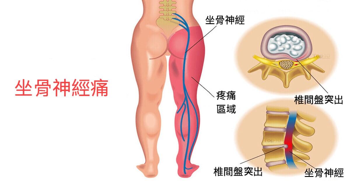 微創脊椎內視鏡手術是什麼?-椎間盤突出-坐骨神經痛-椎間管狹窄推薦必看-坐骨神經痛示意圖