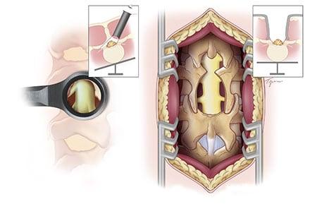 微創脊椎內視鏡手術是什麼?-椎間盤突出-坐骨神經痛-椎間管狹窄推薦必看-微創手術與開放手術傷口大小差異比較圖