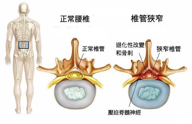 微創脊椎內視鏡手術是什麼?-椎間盤突出-坐骨神經痛-椎間管狹窄推薦必看-脊椎椎管狹窄示意圖