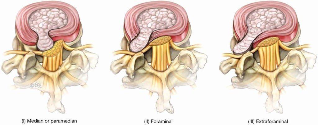 椎間盤突出-症狀與治療-腳麻-下背痛-坐骨神經痛推薦必看-依椎間盤突出的位置不同會壓迫不到不同的神經根