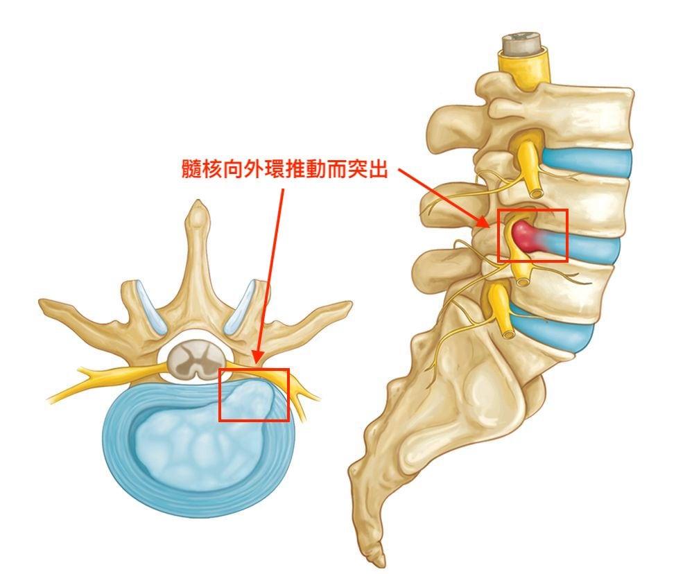 椎間盤突出-症狀與治療-腳麻-下背痛-坐骨神經痛推薦必看-椎間盤突出刺激到神經產生疼痛