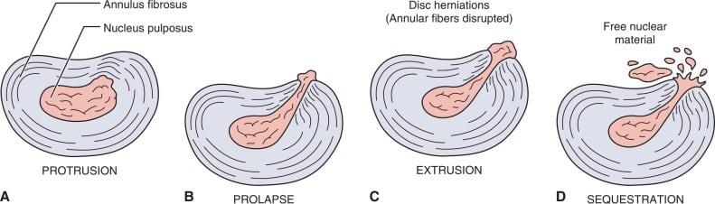 椎間盤突出-症狀與治療-腳麻-下背痛-坐骨神經痛推薦必看-椎間盤突出型態與髓核脫出程度分類圖