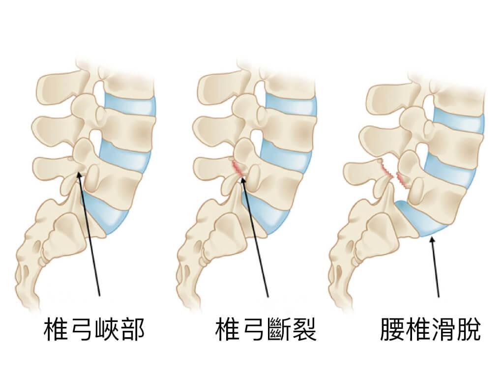 下背痛-腰椎滑脫-椎弓解離-永和骨科推薦-陳奕霖醫師-椎弓斷裂可能造成腰椎滑脫