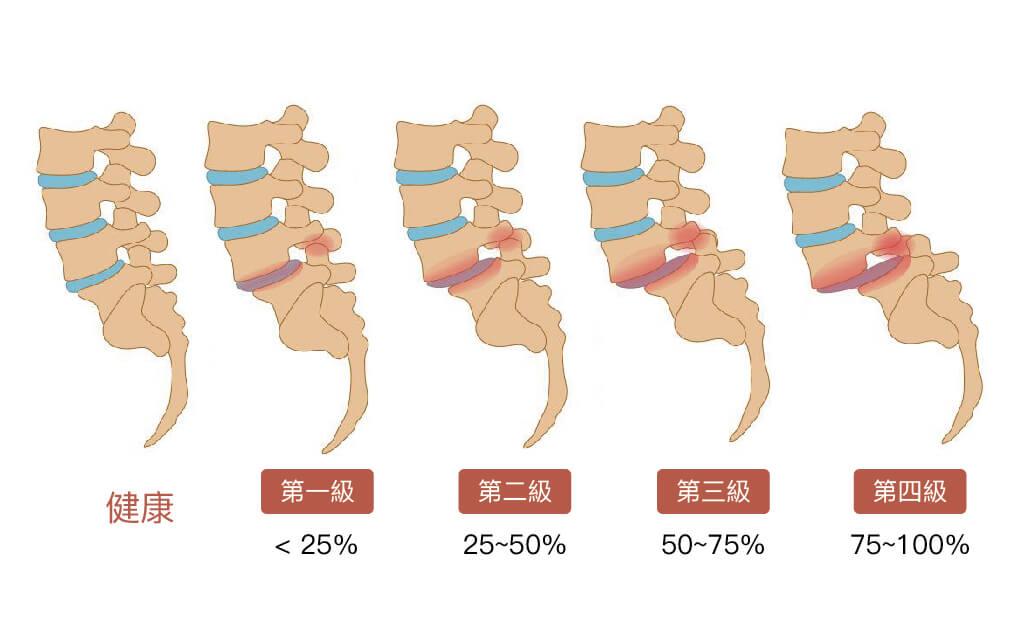 下背痛-腰椎滑脫-椎弓解離-永和骨科推薦-陳奕霖醫師-腰椎滑脫分級