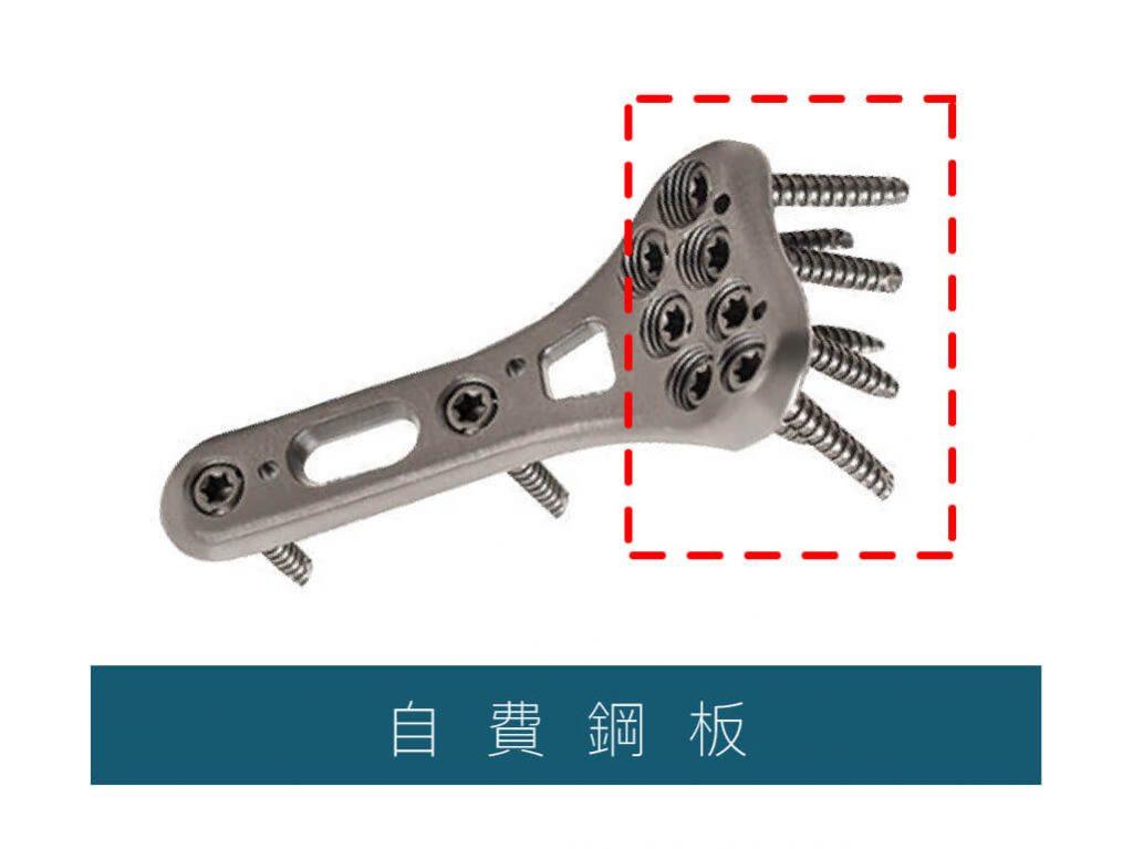 鈦合金鋼板-互鎖式鋼板-骨折自費鋼板-骨折手術