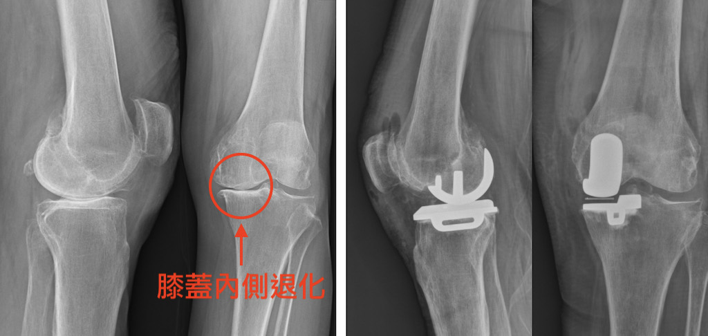 退化性關節炎-活動式半人工膝關節-膝關節手術推薦-經X光確認膝蓋內側退化-採牛津活動式半人工膝關節手術治療