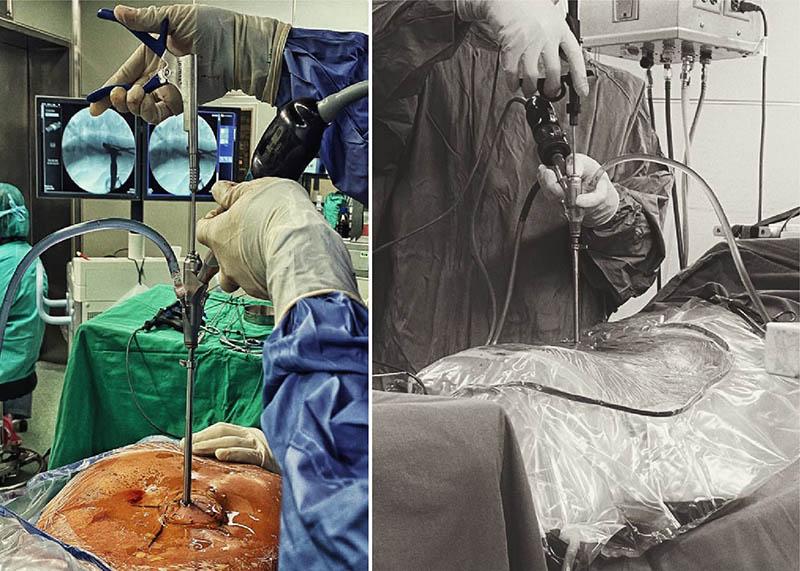 內視鏡-脊椎微創手術-單通道-雙通道-台北骨科-永和耕莘醫院-陳奕霖醫師