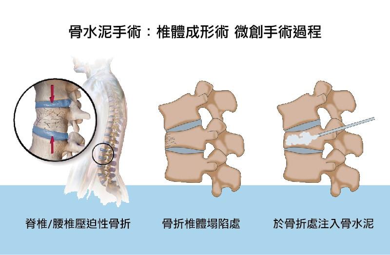 骨水泥手術-椎體成形術手術過程