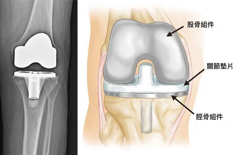膝關節置換術-人工膝關節手術-微創手術