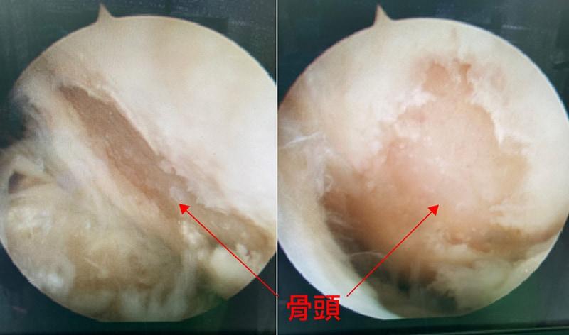 膝關節-內外側關節面-軟骨破損-骨頭露出