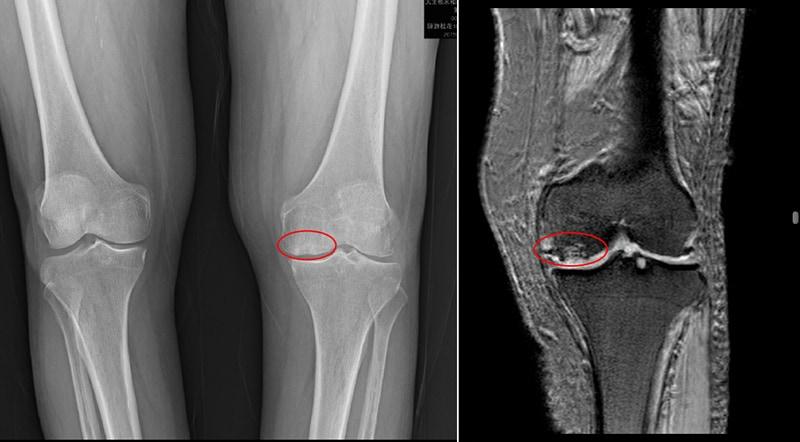 膝關節-軟骨間隙-X光片-核磁共振-骨頭壞死