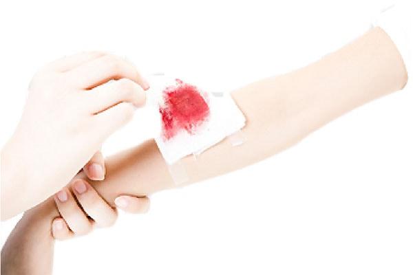 骨折術後護理-傷口換藥步驟-步驟3-移除敷料檢視傷口