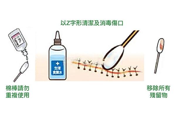 骨折術後護理-傷口換藥步驟-步驟4-用無菌棉枝及生理食鹽水清潔傷口