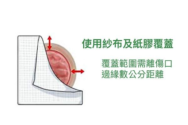 骨折術後護理-傷口換藥步驟-步驟6-使用紗布及紙膠將傷口覆蓋起來