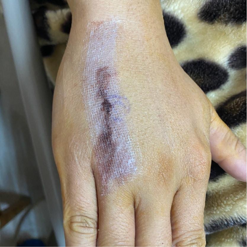 骨折開刀傷口-免縫膠-術後傷口照護方式