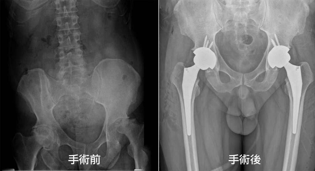 髖關節置換術-案例-永和耕莘醫院骨科-陳奕霖醫師-雙側股骨頭嚴重壞死-人工髖關節置換術-手術前後X光片比較