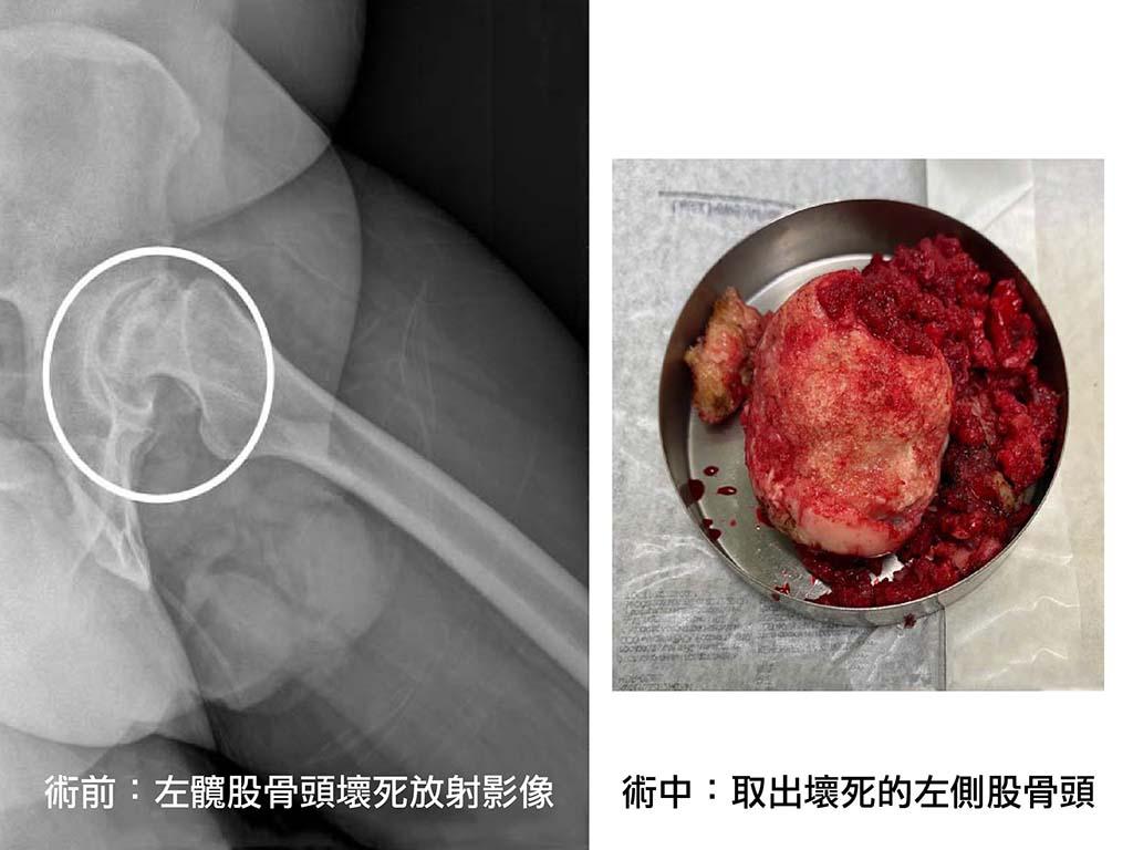 髖關節置換術-案例-永和耕莘醫院骨科-陳奕霖醫師-雙側股骨頭嚴重壞死-人工髖關節置換術-手術前-左髖股骨頭X光片-手術中-取出壞死的左側股骨頭